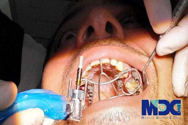 سرجیکال گاید-کلینیک دندان پزشکی مدرن