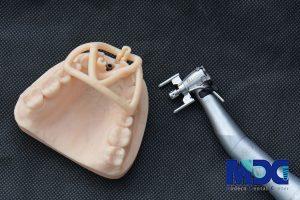 راهنمای جدید برای جراحی کاشت ایمپلنت