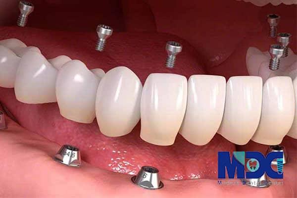 مزایای ایمپلنت کل دهان یا فول موس چیست؟