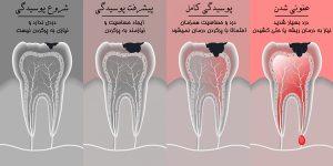 روش درمان پوسیدگی دندان
