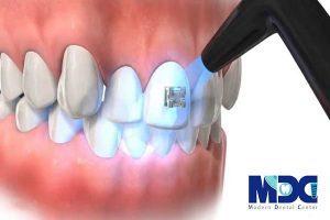 ارتودنسی دندان و براکت ارتودنسی