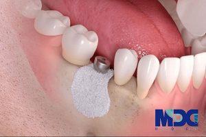 روش های پیوند استخوان کاشت ایمپلنت