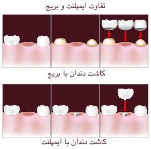 مزایای ایمپلنت دندان نسبت به سایرجایگزین های بی دندانی