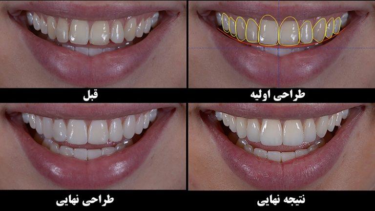 طراحی لبخند هالیوودی به روش دیجیتال