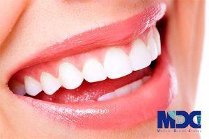 فیلم کامپوزیت دندان با تکنیک جدید