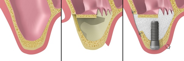 نحوه جراحی سینوس لیفت بسته در کاشت ایمپلنت