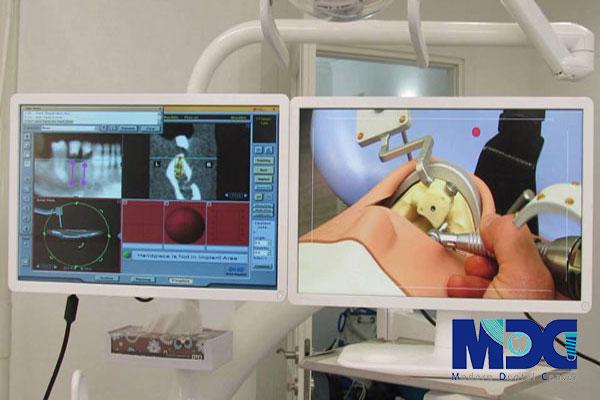 راهنمای جراحی ایمپلنت