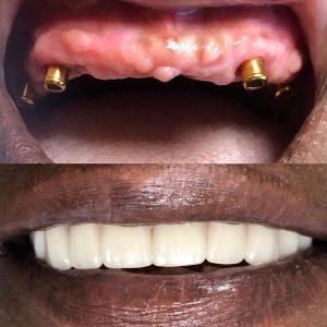کاشت ایمپلنت دندان های جلو فک بالا