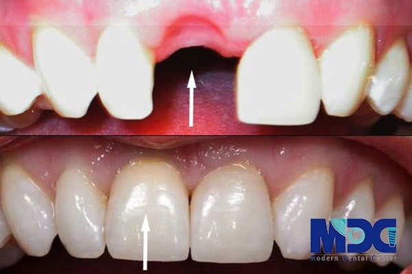 کاشت ایمپلنت دندان جلو