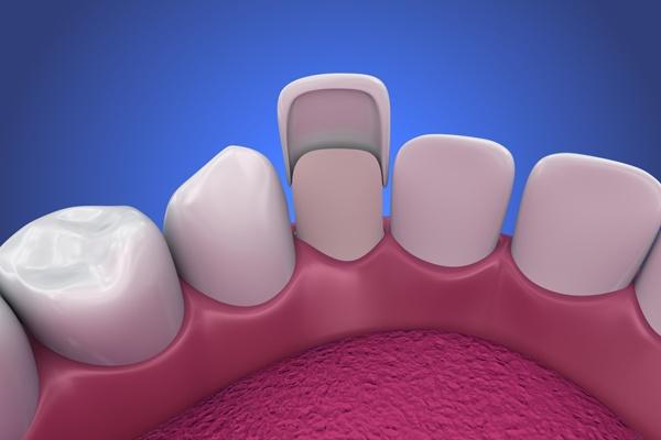 آماده سازی دندان برای لمینت