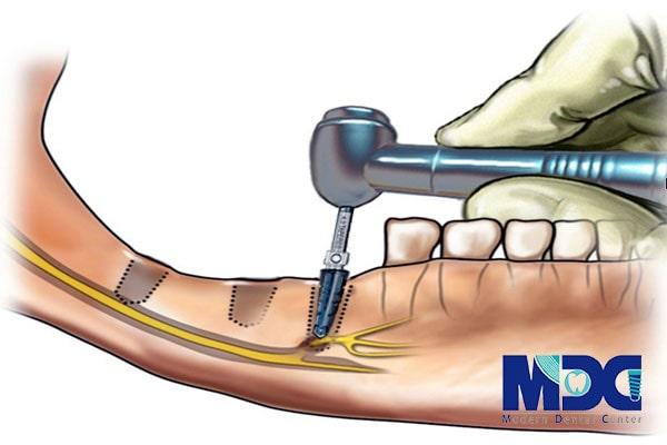 آسیب به عصب در کاشت ایمپلنت