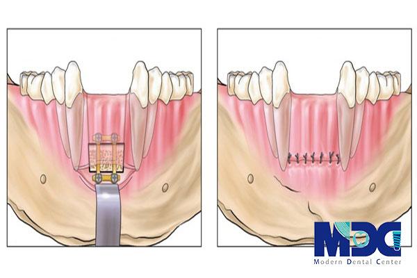 پیوند بلوک استخوان ایمپلنت