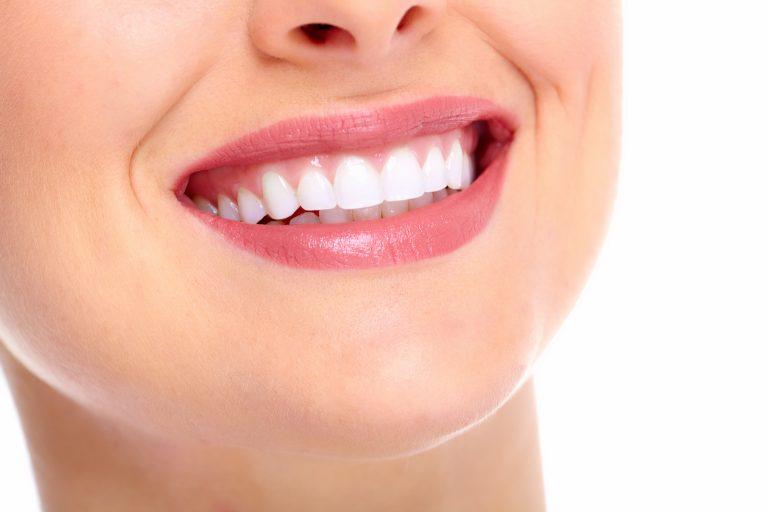 Read more about the article مراقبت های بعد از ترمیم دندان!
