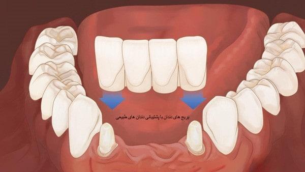 بریج دندان ( تفاوت بریج با ایمپلنت )