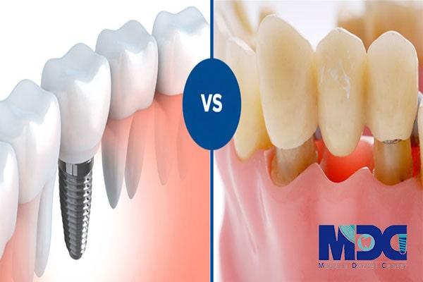 تفاوت روکش دندان و ایمپلنت
