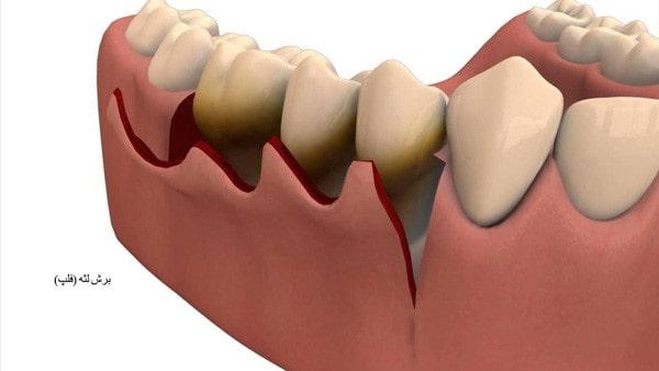 برش لثه برای کاشت دندان