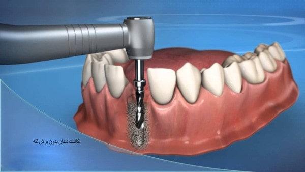 کاشت ایمپلنت دندان بدون برش