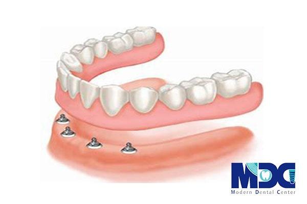 دندان مصنوعی بر پایه ایمپلنت
