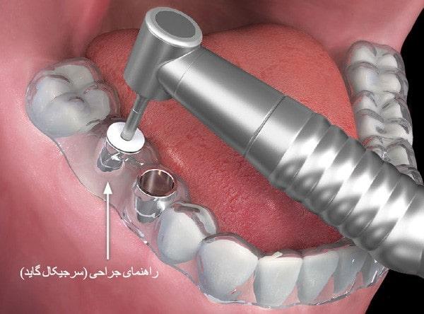 کاشت دندان با گاید جراحی