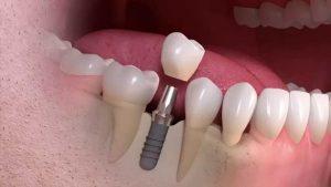 پیوند استخوان ایمپلنت دندان