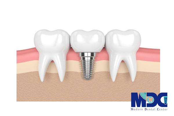 ایمپلنت و دندان طبیعی
