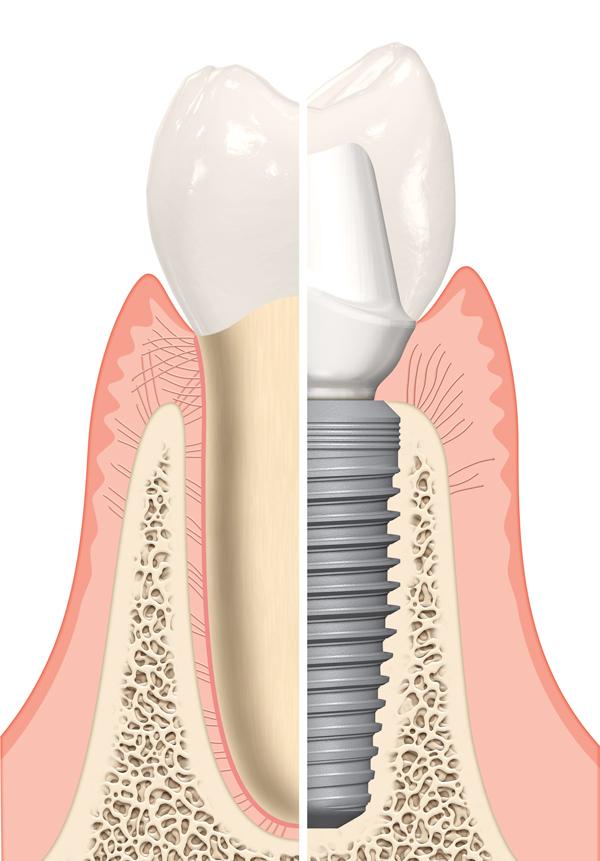 شباهت روکش ایمپلنت با دندان طبیعی فرد