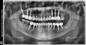 عوامل شکست ایمپلنت دندان