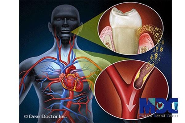 ایمپلنت دندان برای بیماران قلبی
