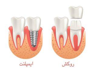 تفاوت ایمپلنت با روکش دندان
