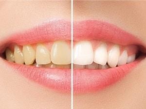 نمونه کار ایمپلنت دندان