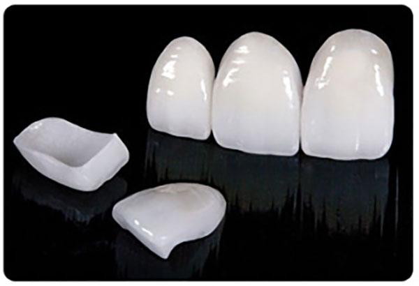 لمینت دندان آماده شده در لابراتوار