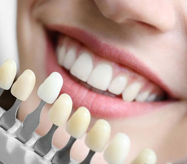 انواع رنگ کامپوزیت دندان