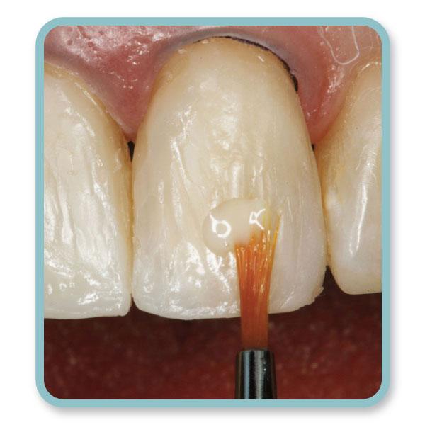 مواد کامپوزیت دندان