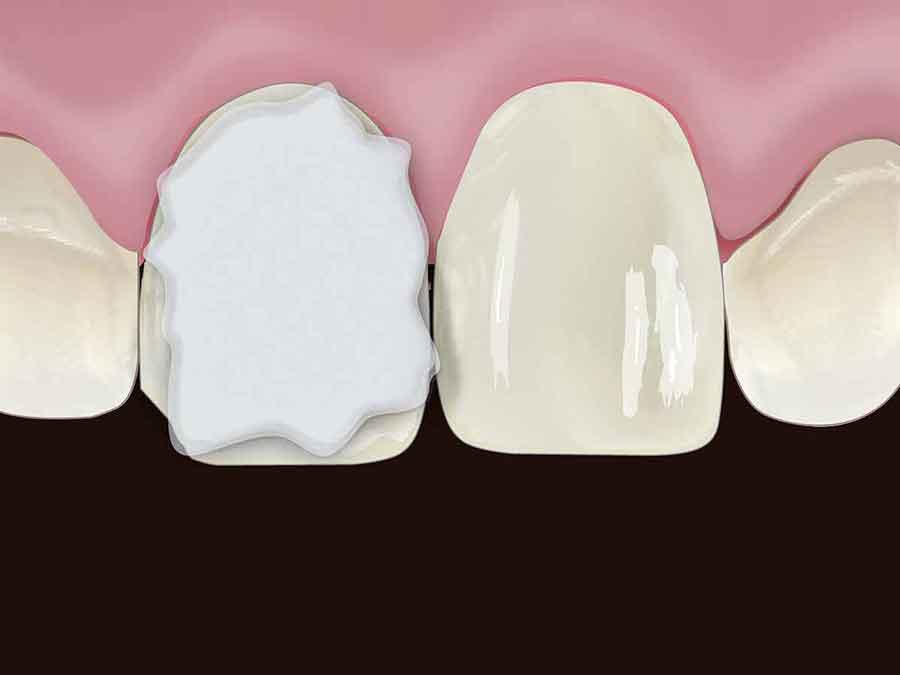 متریال کامپوزیت دندان