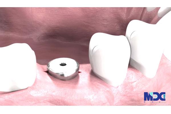 مراحل کاشت ایمپلنت دندان به صورت دائم