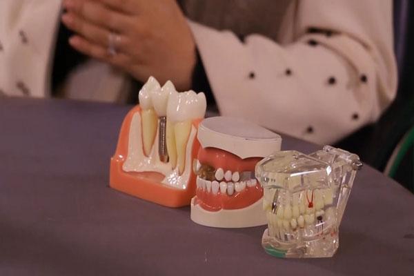 پیشگیری از پوسیدگی دندان قسمت اول