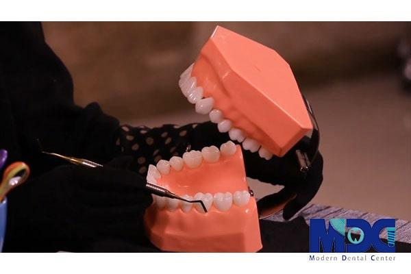 کنترل پلاک دندان