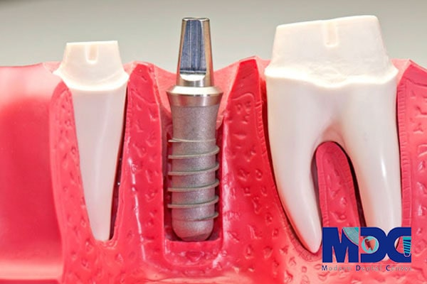 You are currently viewing درمان بی دندانی با سلول های بنیادی