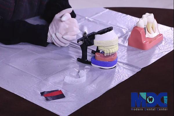 کاربرد نایت گارد در کوتاه گرفتن روکش ایمپلنت