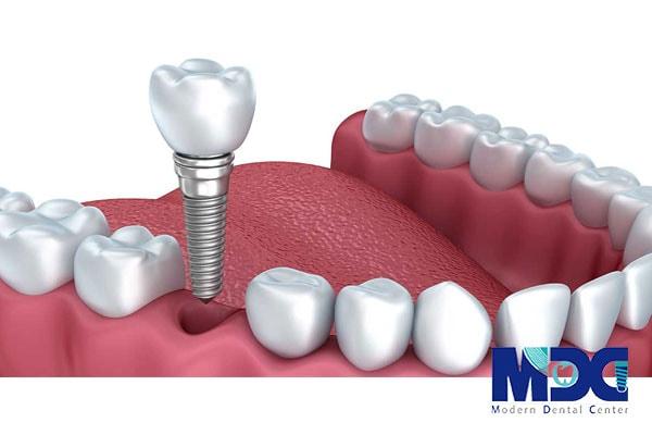 تاریخچه ایمپلنت دندانی در ایران