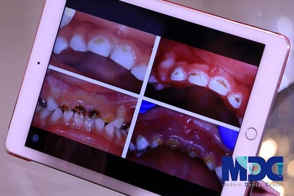 پوسیدگی دندان در زمان بارداری