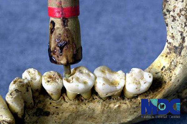 ایمپلنت دندان در ایران باستان
