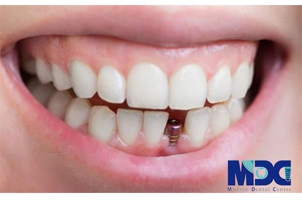 بهترین برند های ایمپلنت دندان