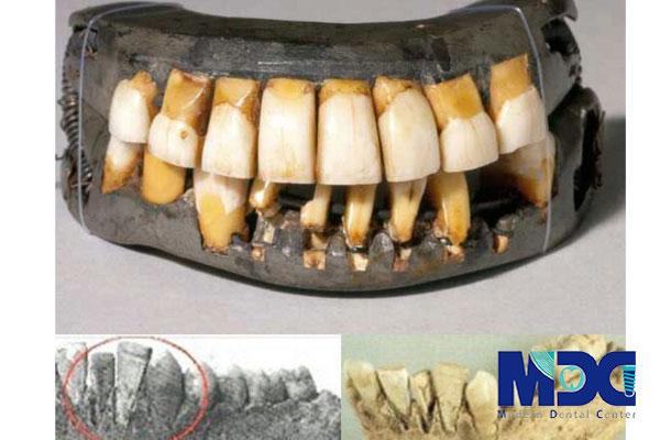ایمپلنت دندانی ایرانی