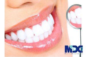 سفید کردن دندان (4 روش)
