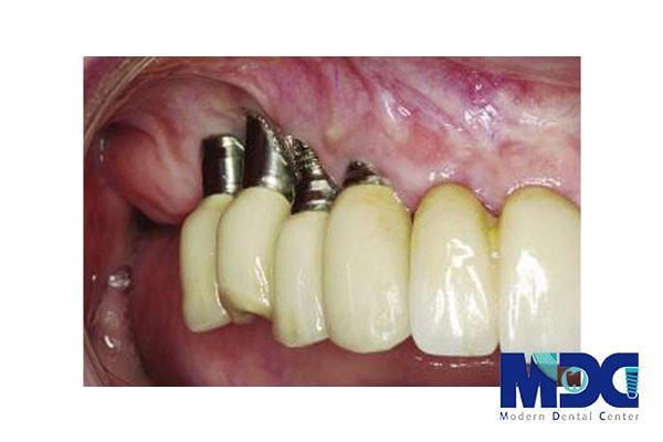 لقی دندان بعد از جراحی ایمپلنت