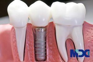 ویژگیهای ایمپلنت دندان