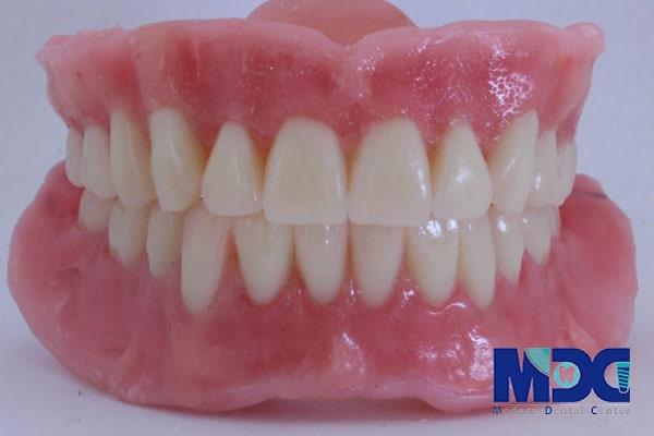 دندان مصنوعی متکی بر لثه