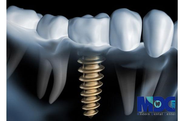 کاشت ایمپلنت آمریکایی دندان