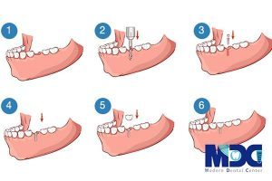 ایمپلت دندان برای چه افرادی توصیه میشود؟ | خطرات ایمپلنت چیست؟